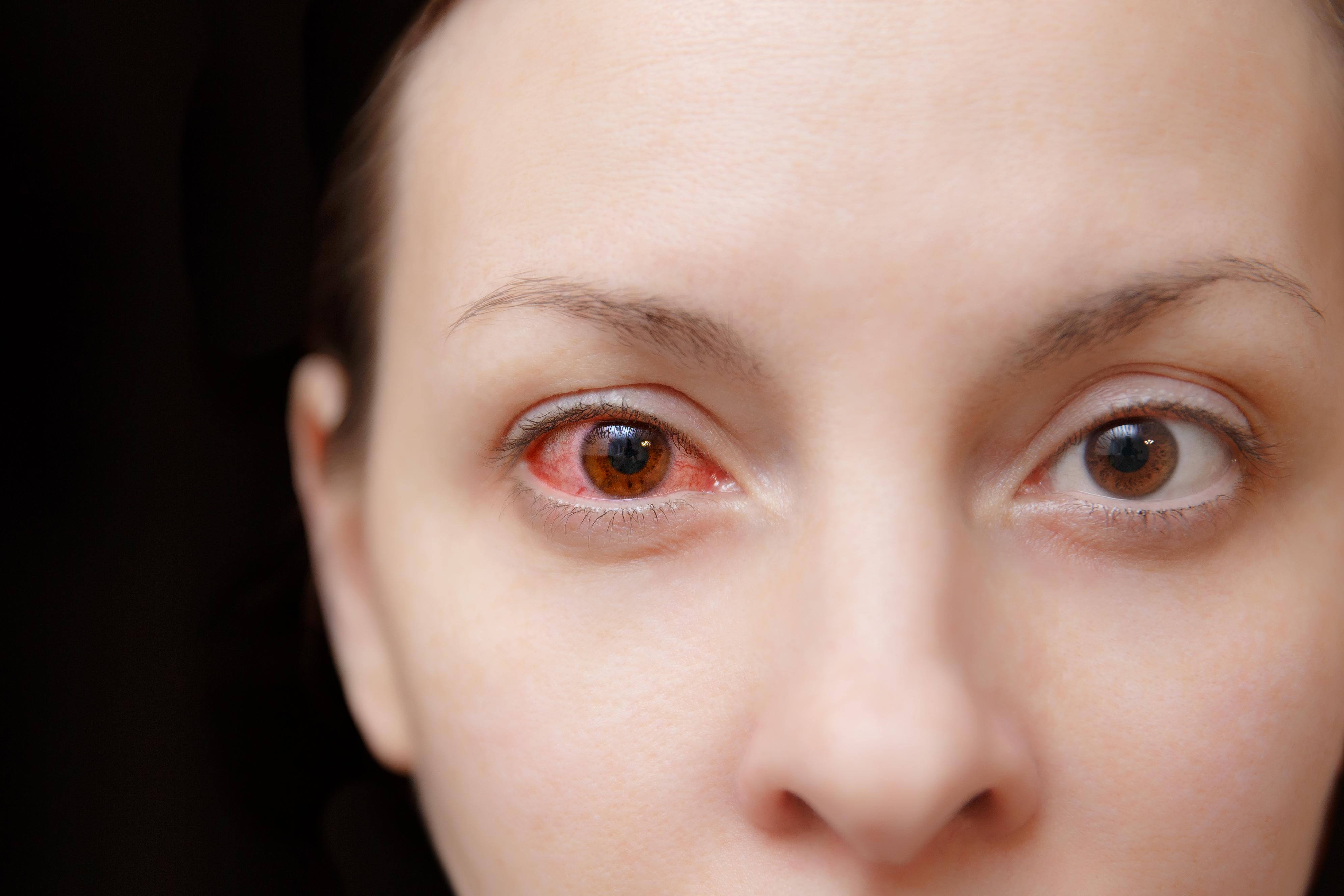 optometrist examining infected eye