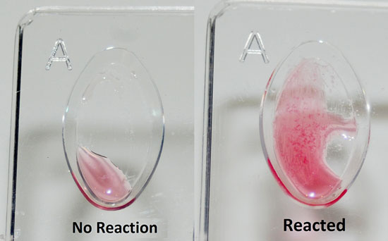 Two blood samples exposed to antiserum. In the sample on the right, reactions produce visible particles in solution.