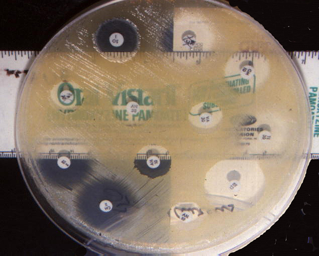 zones of inhibition on a bacterial culture plate