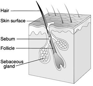 MicroBiology Science Project diagram of normal pilosebaceous unit including follicle and sebaceous gland