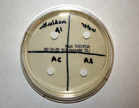 MicroBiology Science Project agar plates with acne medication diffusion disks