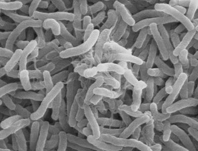A scanning electron microscope pictures shows cholera bacteria magnified thousands of times.