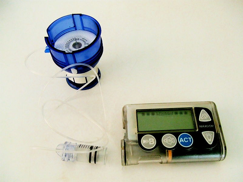 Career Endocrinologist Insulin pump with infusion set