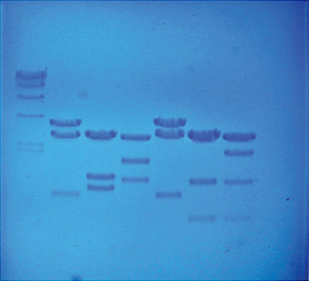 Gel with stained DNA fingerprints.