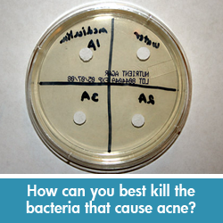 Kill acne-causing bacteria science project